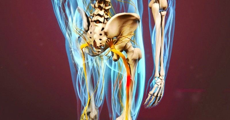 Беспокоит седалищный нерв? Вот два необходимых упражнения