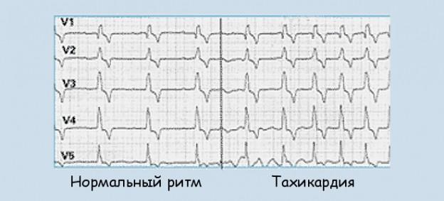 Как спасать жизнь при сердечном приступе? У вас есть только 10 секунд!