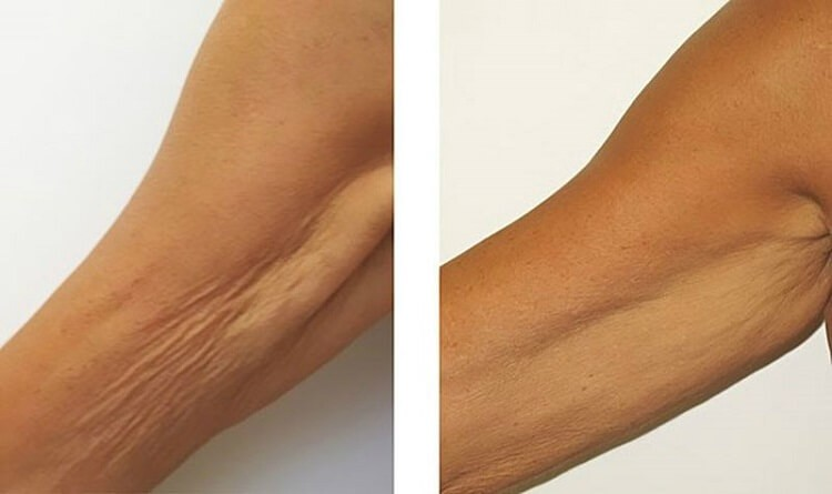 Это средство решит проблему морщинистой шеи, дряблых рук и подтянет кожу лучше пластики