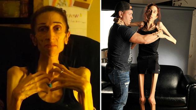 Теперь в возрасте 37 лет стала весить 18 кг, женщина хотела выглядеть лучше и просушить пресс
