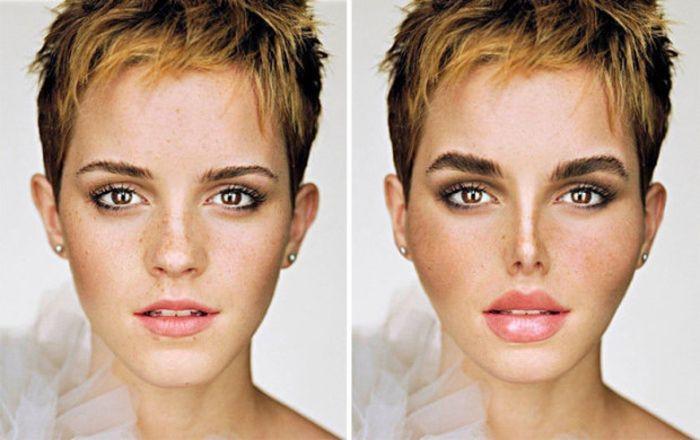 Как выглядели бы знаменитости, если бы сделали популярные пластические операции