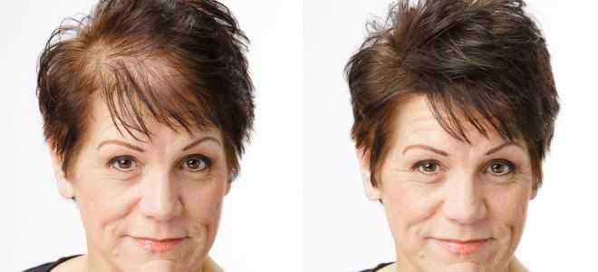Миноксидил для волос для женщин – для роста, от выпадения волос, аналоги