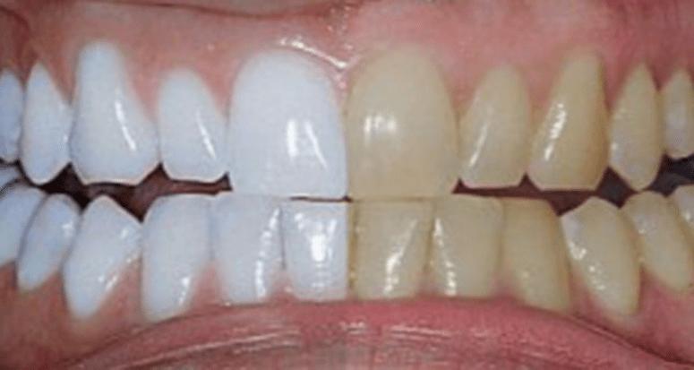 Мужчина смешал 2 Ингредиента и нанес на зубы. Я обязательно попробую также