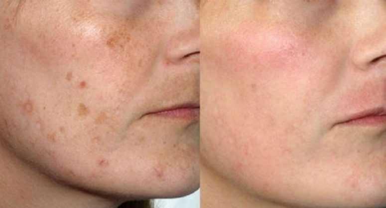 Морщины, пигментные пятна и темные круги исчезнут с вашего лица всего за 2 дня, если вы будете использовать это!