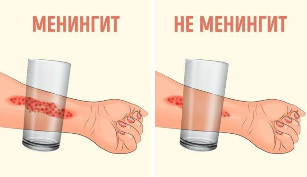 Симптомы менингита, о которых должен знать каждый родитель