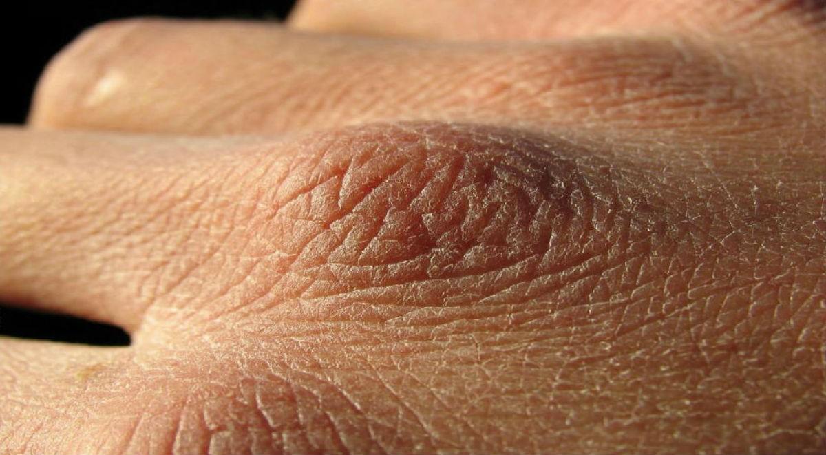Причины и лечение шелушения, сухости и трещин кожи на руках