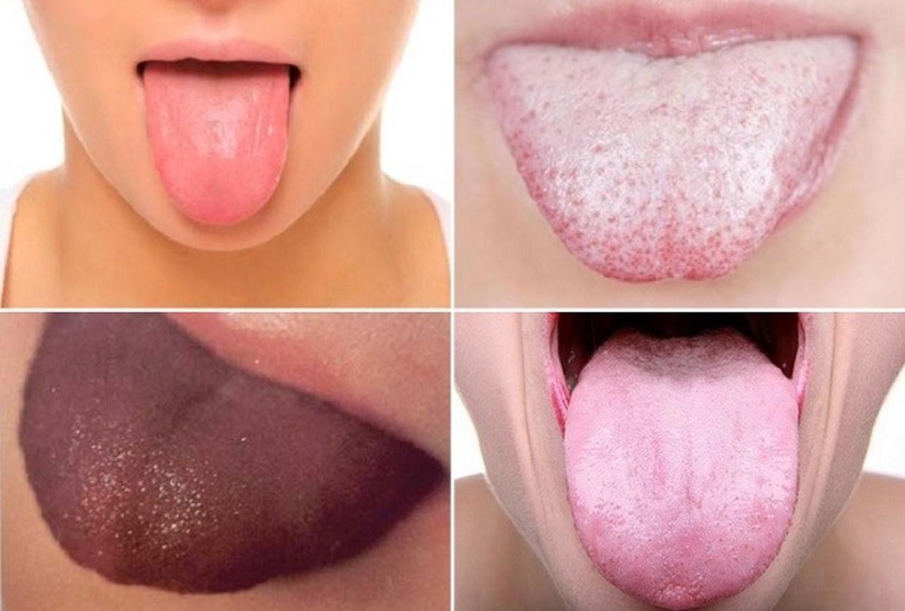 Что расскажет язык о вашем здоровье