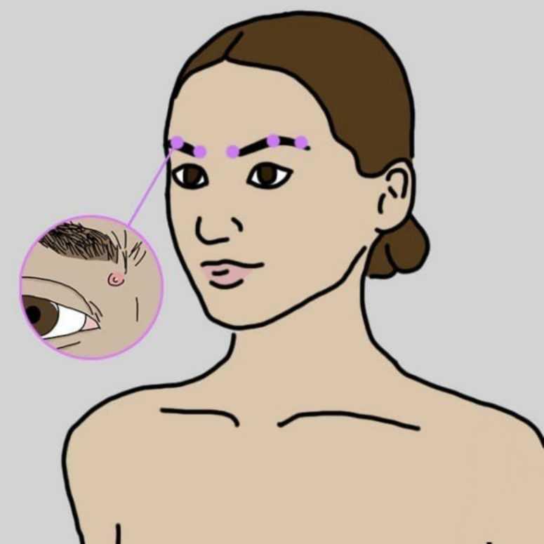 Причины высыпаний на разных участках лица