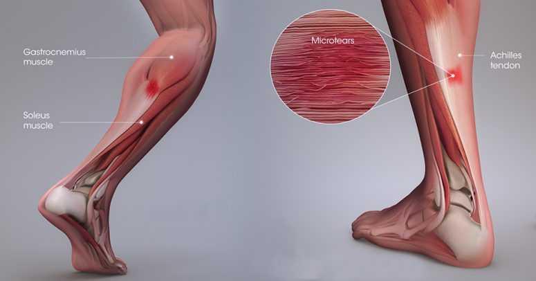 По какой причине болят икры ног?