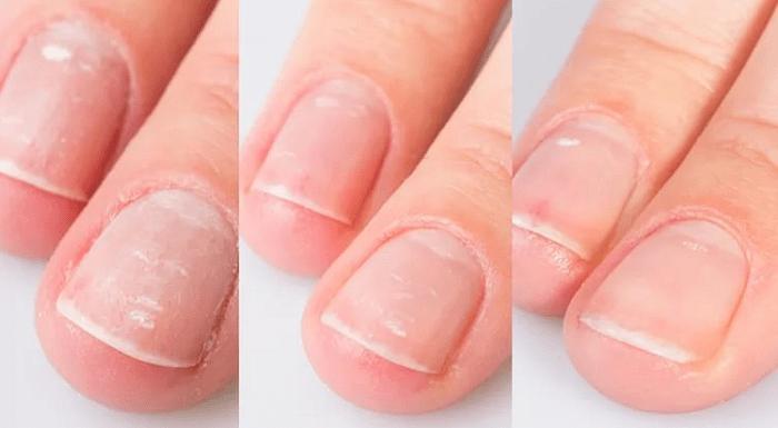 Восстановление ногтей после наращивания или гель-лака, суперспособ