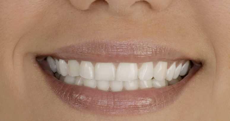 Как ухаживать за зубами
