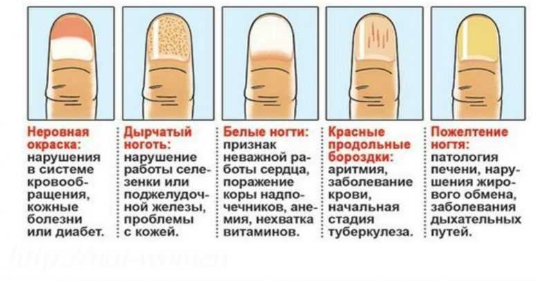 О чем говорят полосы на ногтях
